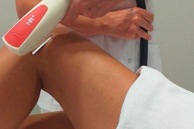 apararatologia corporal fotodepilacion